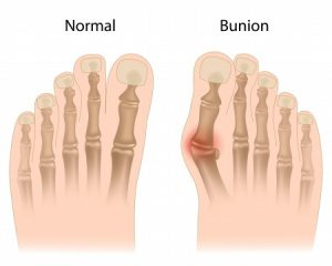 Bunion-Chiropractic-Clinic